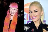 Gwen Stefani mit Zähnen Vorher/Nachher