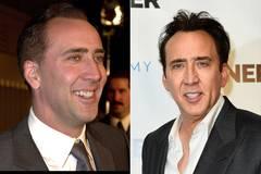 Nicolas Cage mit Zähnen Vorher/Nachher