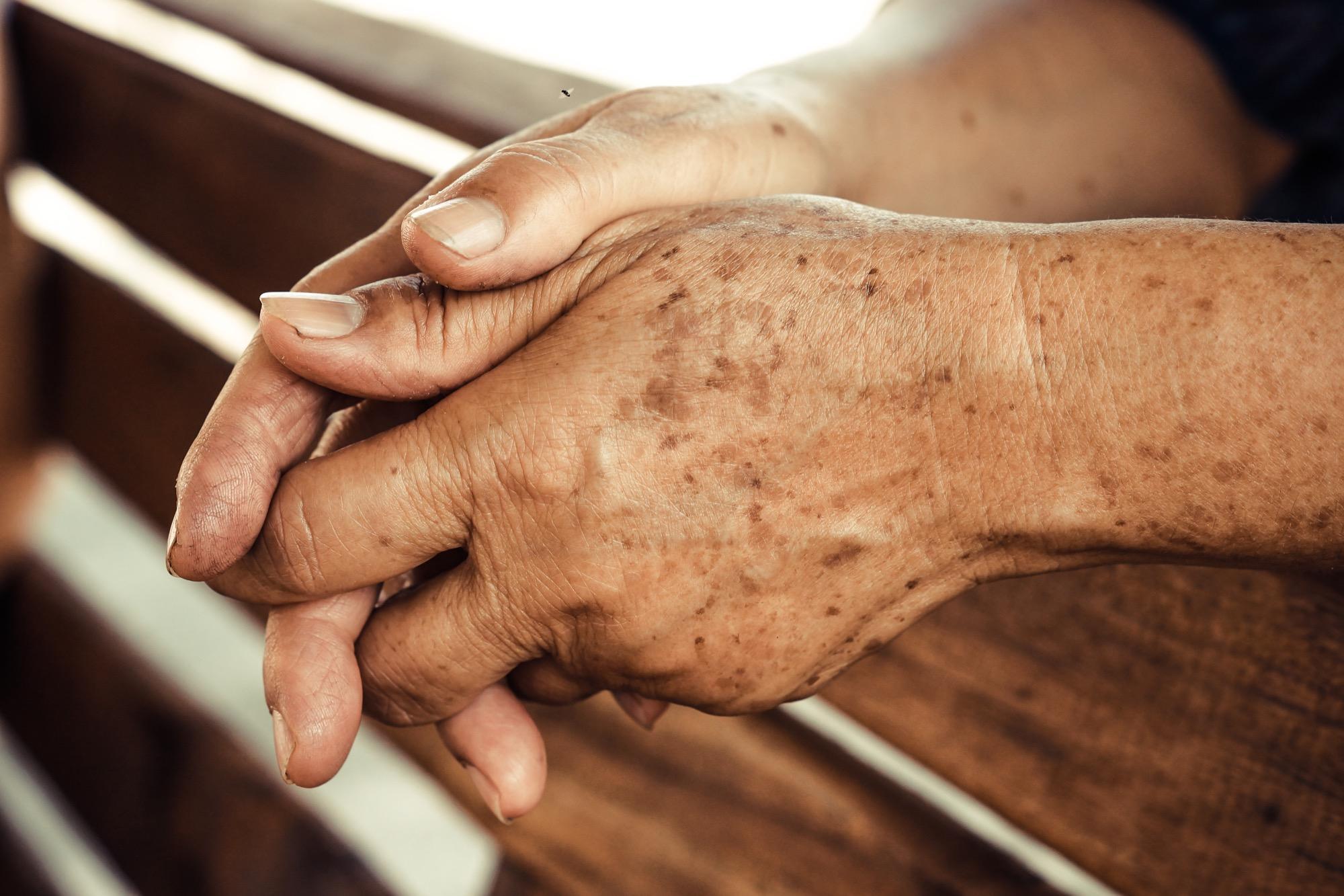 Altersflecken Was Ihr Dagegen Tun Könnt Brigittede