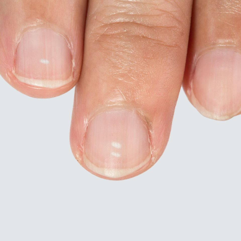 Fingernagel, Fleck