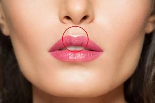Tubercles: Woman mouth