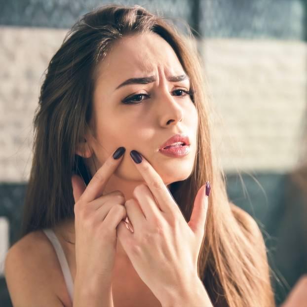 Spätakne - das hilft gegen Pickel und Mitesser