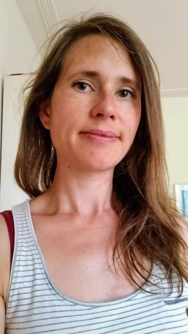 Kraniosynostose: Eine Mutter erzählt