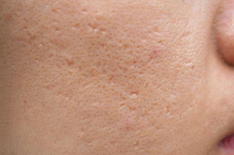 Krasse Vorher/Nachher-Bilder der Akne-Patienten