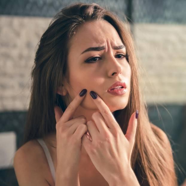 Frau mit Pickel im Gesicht