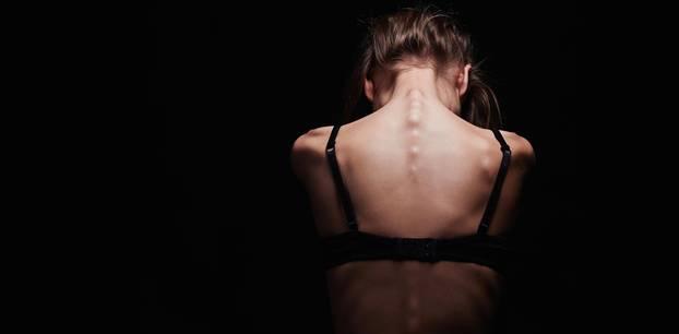 Magersucht: Eine junge Frau mit freiem Rücken.