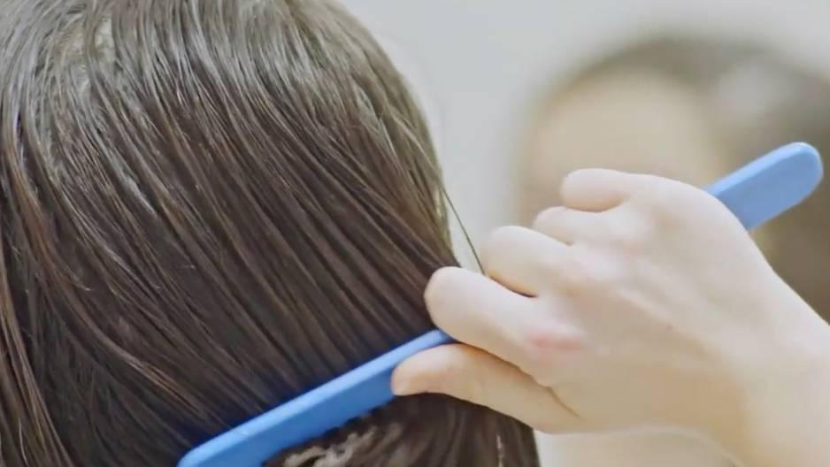 Das sind die Gründe für Haarausfall