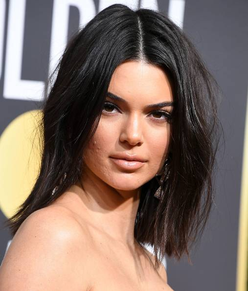 Kendall Jenner mit Akne
