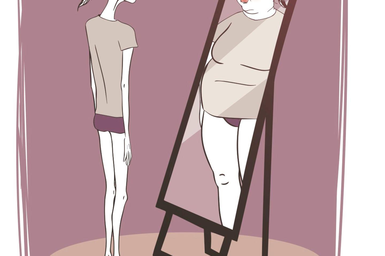 Extreme Magersucht vor und nach dem Abnehmen