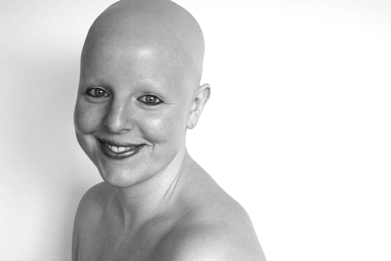 """""""Ich bin einfach auf eine andere Art schön"""" – Wie es ist, ohne Haare zu leben"""