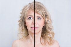 """Das erste Mal Botox: """"Hänge ich jetzt an der Spritze?"""""""