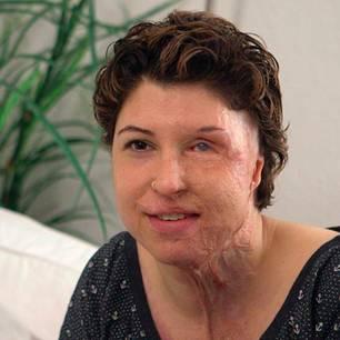 Säure-Opfer Vanessa M.