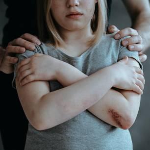 Strähnchen gefärbt: Vater schneidet Tochter zur Strafe die Haare