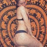 Instagram: Eine Frau mit Schuppenflechte posiert in Unterwäsche