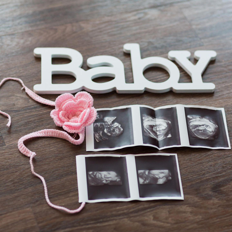 Liebevoll drapierte Ultraschallbilder als Flatlay auf Tisch mit Blume und dem Wort Baby