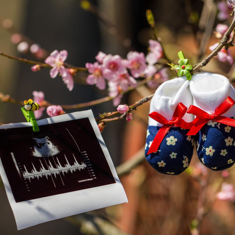 Ultraschallbild hängt in Garten an Baum mit Blüten und Babyschuhen