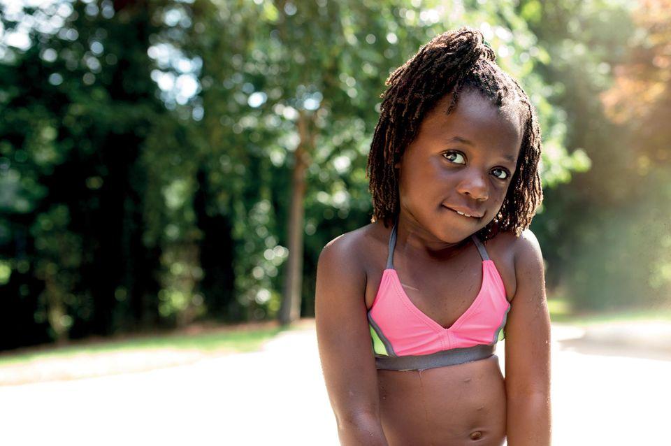 Emmy, 6, zeigt ihre Narben