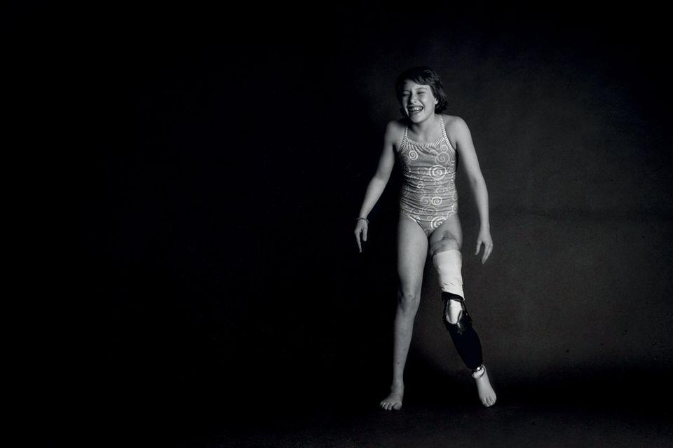 Mädchen mit Beinprothese