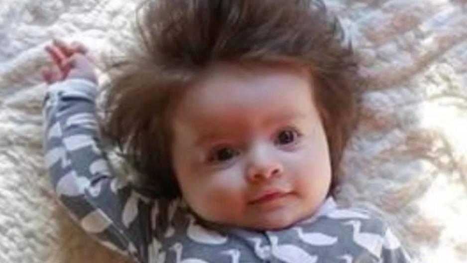 Unglaubliche Haar-Pracht: Dieses Baby fasziniert alle!