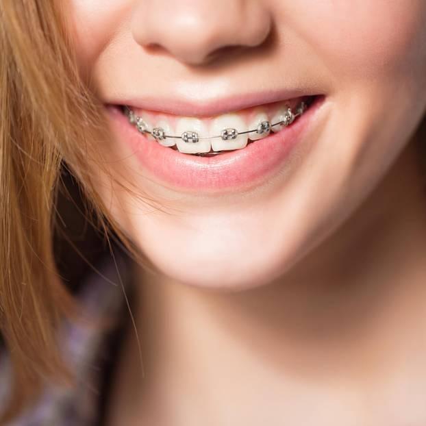 Zahnspange: Mädchen mit Zahnspange