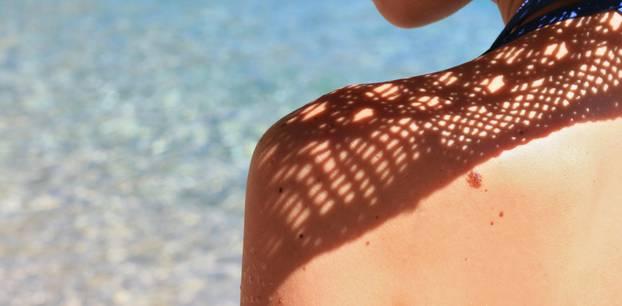 Leberfleck und Muttermal entfernen: Frau zeigt Pigmentflecken
