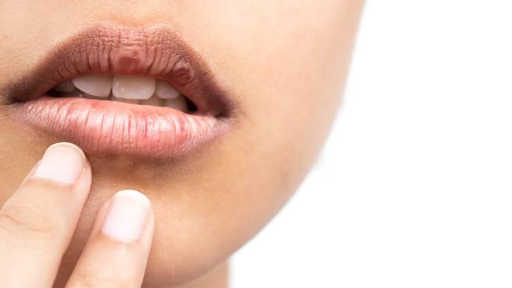 Spröde Lippen: Frau fasst an empfindliche Stelle