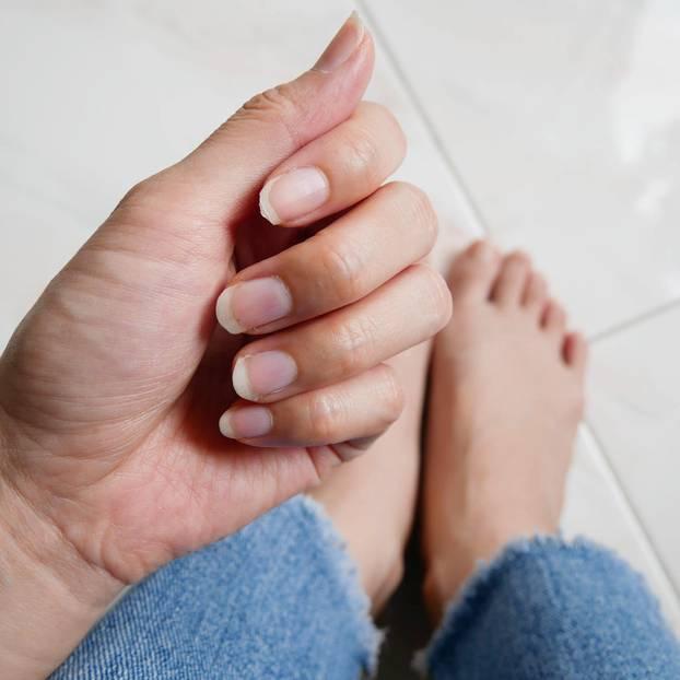 Fingernägel: Was Form und Farbe über eure Gesundheit verraten