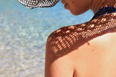 Hautkrebs erkennen: Rücken einer Frau