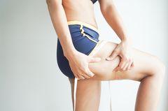 Bindegewebsschwäche: Frau kneift sich in den Oberschenkel
