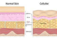Bindegewebsschwäche: Grafik Cellulite