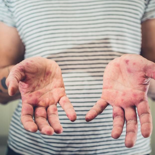 Kinderkrankheiten: Frau zeigt Hände mit Ausschlag