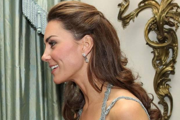Herzogin Kate hat eine große Narbe am Kopf – und die Welt spekuliert: Woher?