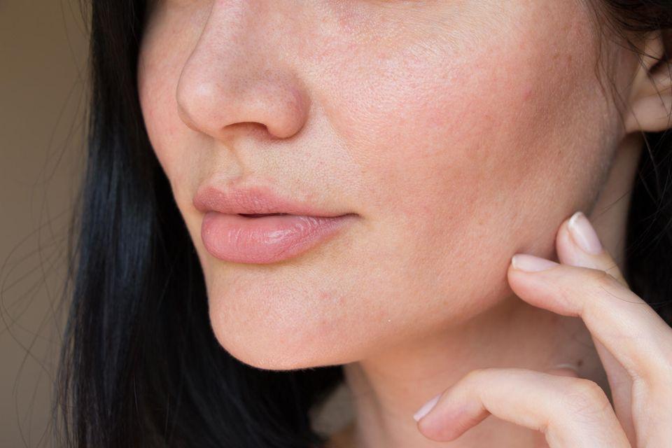 Schuppige Haut: gerötete trockene Gesichtshaut