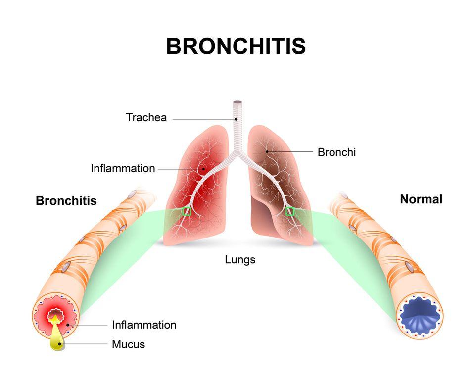 Starker Husten: Grafik einer Bronchitis