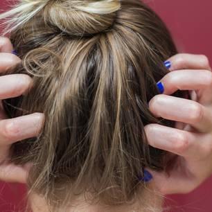 Hausmittel gegen Schuppen – Frau juckt der Kopf