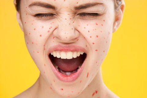 Zink gegen Akne: Frau mit Pickeln im Gesicht