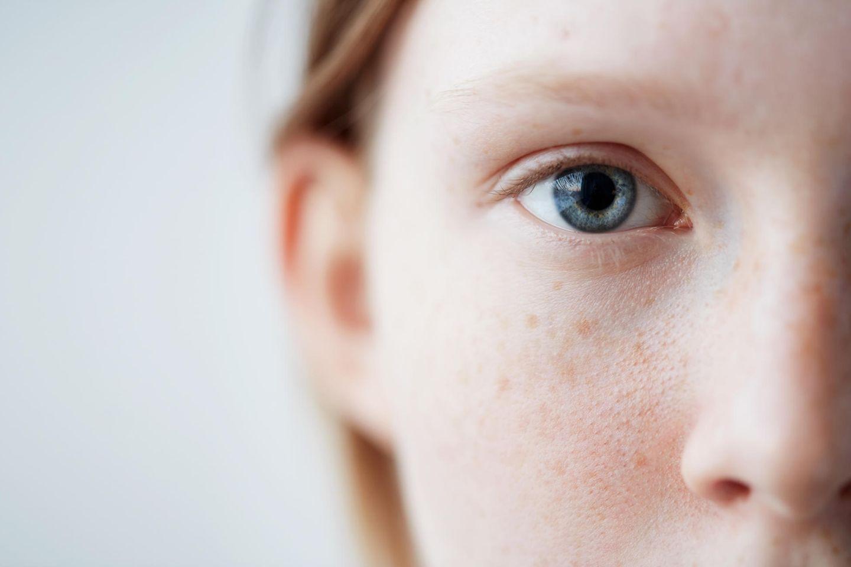 Empfindliche Haut: So beruhigen wir Rötungen und Schuppen