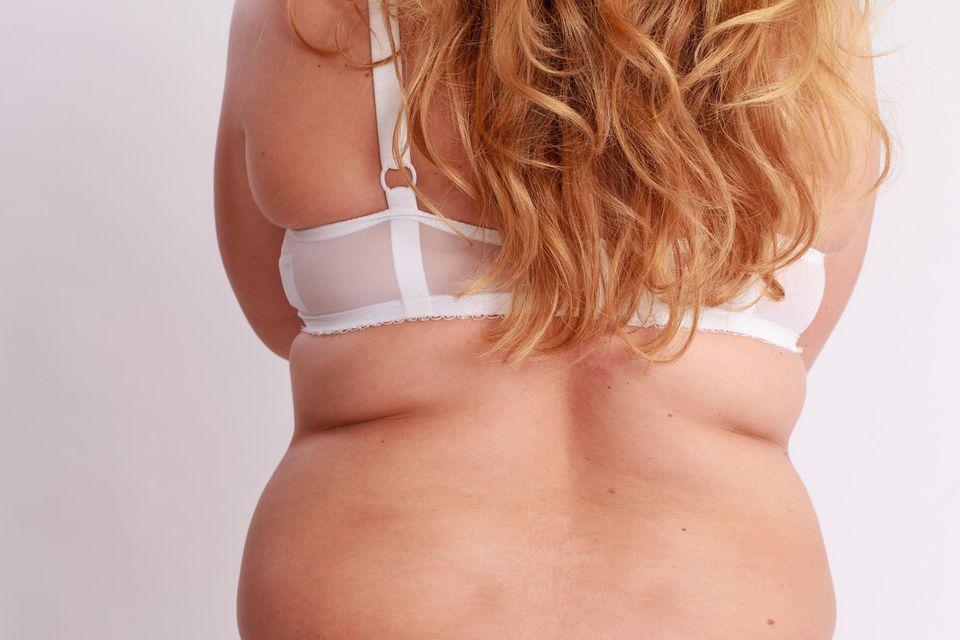 Melodie Michelberger: Instagram-Star kämpft mit Fotos ihres Körpers für mehr Selbstliebe