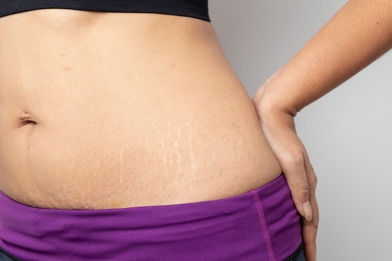 Abnehmen der Arme Rücken- und Bauchbilder
