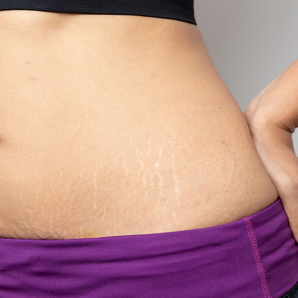 Abnehmen nach der Schwangerschaft: Frau mit Dehnungsstreifen am Bauch