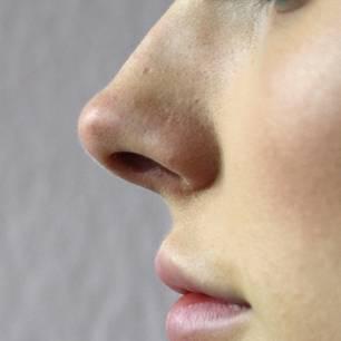 Was die Form deiner Nase über deine Persönlichkeit verrät