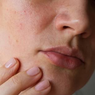 Pickelmale: Gesicht mit Pickelmalen