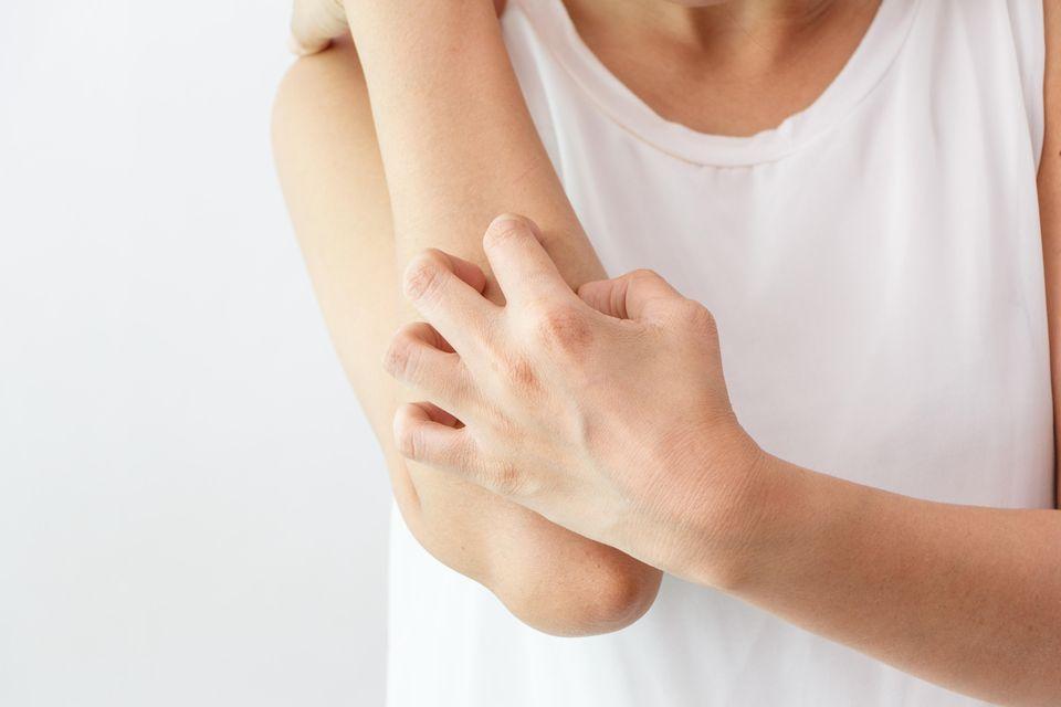 Neurodermitis Symptome: Person kratzt sich mit Händen am Unterarm