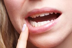 Aphthen: Frau fasst sich an den Mund
