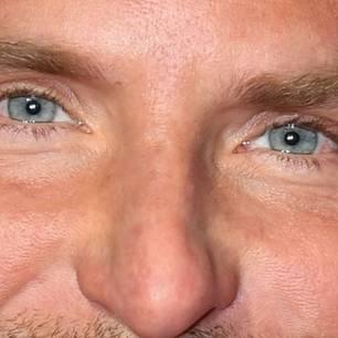 Bradley Cooper: Was ist mit seinem Gesicht passiert?