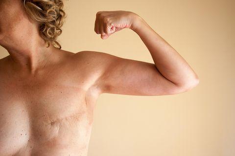 Brustkrebs: Diese Frauen lehnen Rekonstruktion ab – und kritisieren ihre Ärzte