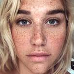 Stars ohne Make-up: Kesha mit Sommersprossen