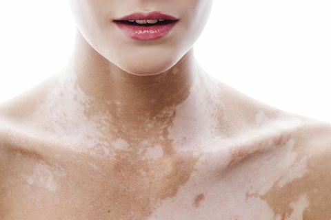 Vitiligo: Frau mit Weißfleckenkrankheit (Vitiligo) am Hals und Dekolleté