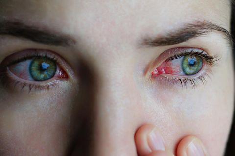 Allergie-Symptome: Frau mit roten Augen