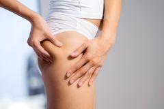Cellulite am Po: Frau kneift mit Fingern in die Haut am Po